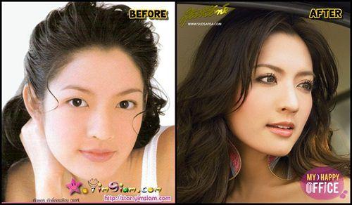 Ngắm nhan sắc sao Thái trước và sau phẫu thuật thẩm mỹ (1)