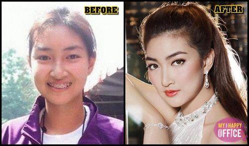 Ngắm nhan sắc sao Thái trước và sau phẫu thuật thẩm mỹ (10)