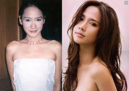 Ngắm nhan sắc sao Thái trước và sau phẫu thuật thẩm mỹ (3)